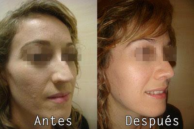 Cirugia Estetica Facial Cicatrices de Acne en Clinica BMS